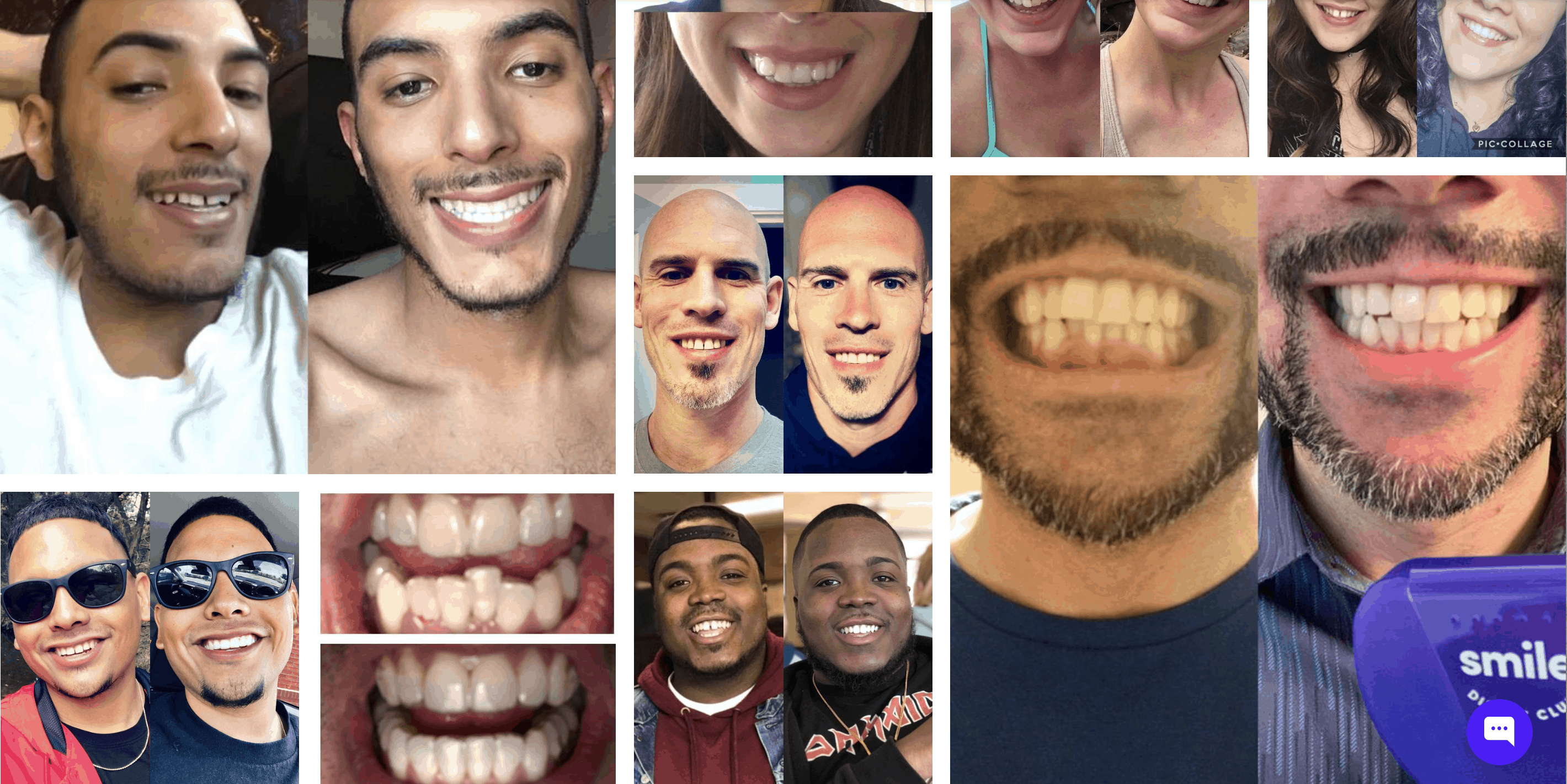 Before and after images from Smile Direct Club Customers